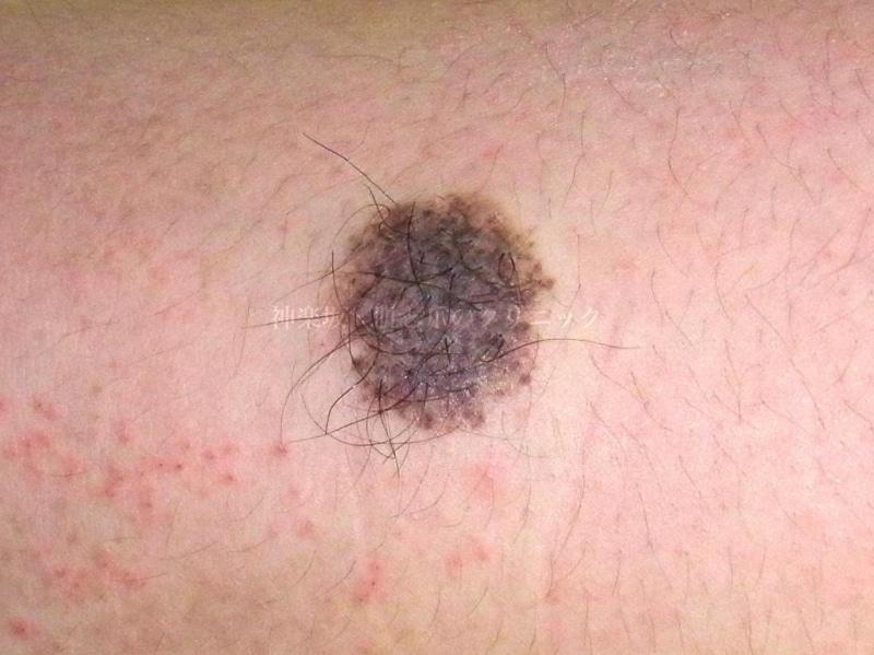 粉瘤 中身 色