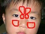 子供の副鼻腔炎(蓄膿症)