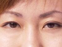 エイジングで減少するルテイン摂取で眼病予防!