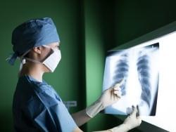 病気?再検査? 健康診断で肺に影があると言われたら
