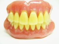 入れ歯が痛い……3つの原因