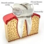 虫歯の種類