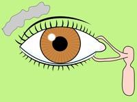 """sistema_lacrimal"""""""