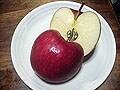 糖尿病なのに腎臓結石!何を食べたらいい?