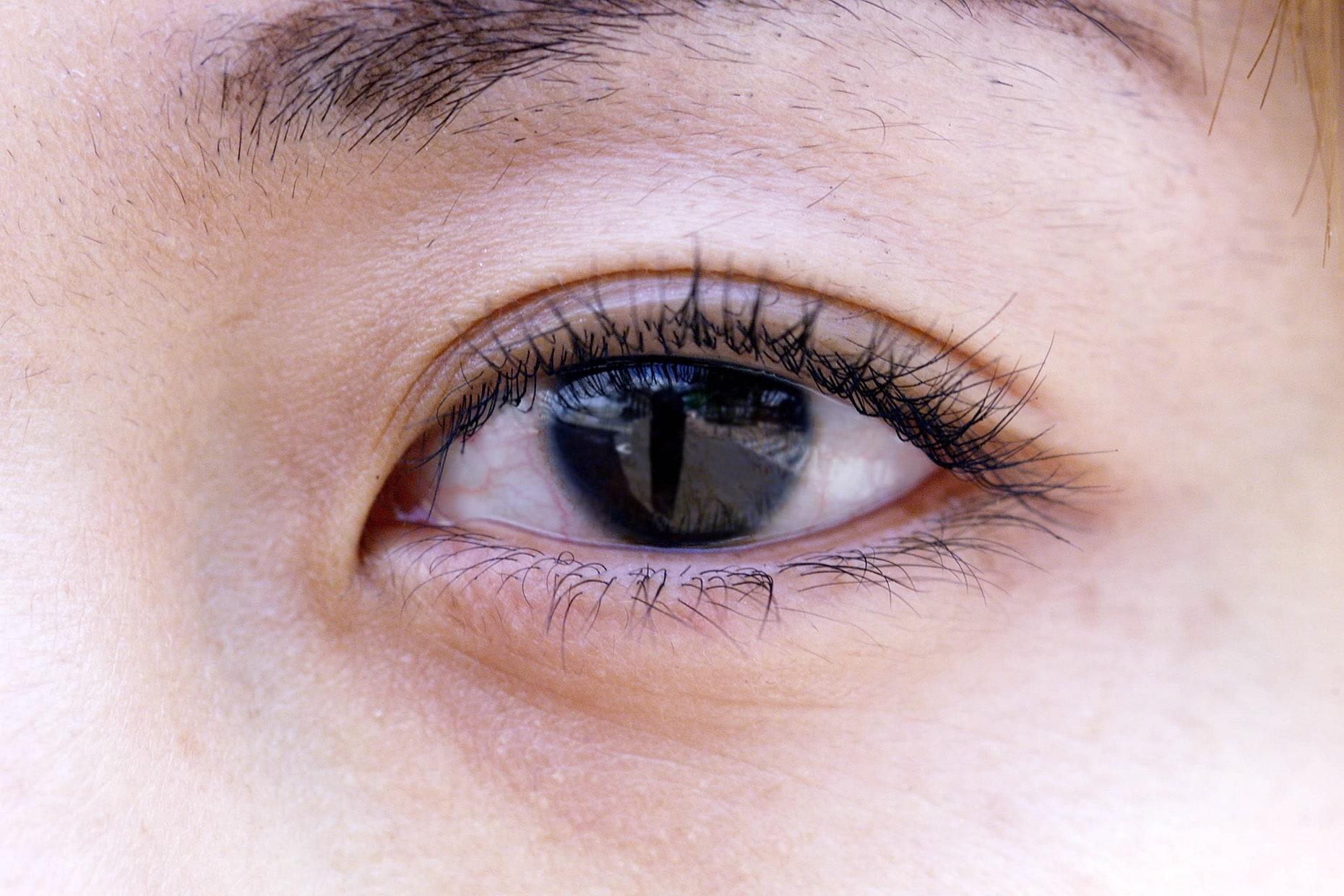 花粉症の目の症状と対策法