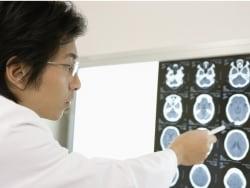 医師が解説!良性腫瘍と悪性腫瘍の違い・特徴・見分け
