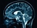 脳・神経の病気一覧