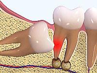 親知らずの治療・抜歯のリスクと注意点