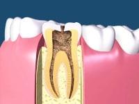 素朴な疑問!歯の神経はどうやって取るの?