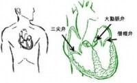 心臓の弁のうち、よく病気にやられる3つを示します。弁膜症では不整脈がよく起こり、動悸が発生します