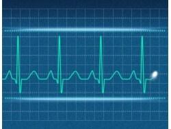 動悸の原因・考えられる病気一覧