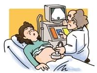 結石診断に有用な超音波検査
