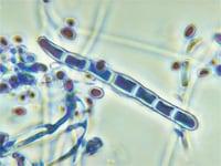 水虫の基礎知識
