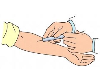 膠原病(こうげんびょう)の検査