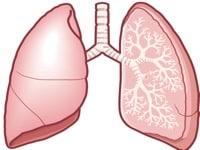肺がんの初期症状とその進行