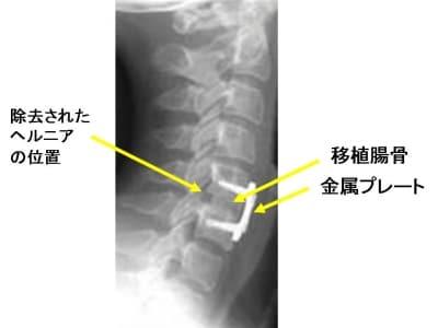 前方固定術の術後単純X線像