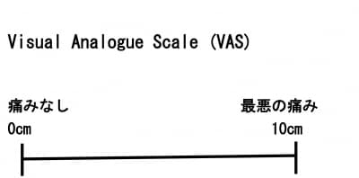 VAS,Visual analogue scale,痛み評価方法、癌の痛み