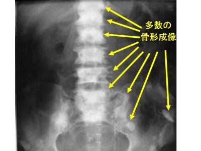 腰椎骨盤単純X線正面像