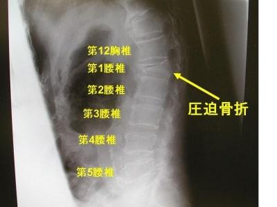 腰椎単純X線側面像