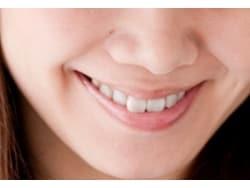 芸能人の審美歯科治療とは
