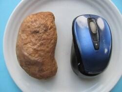 ポーションコントロールは糖尿病食事療法の基本