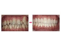 装置を着けない歯並び治療の具体的なポイント