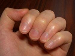 切断指…指切断時の応急処置・手術・リハビリ