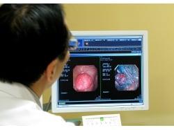 大腸ポリープと言われたら…原因・切除適応・予防法