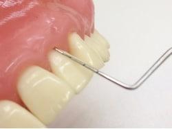 歯科インプラントの定期検診、チェック項目とポイント