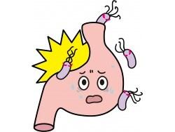 胃がんの主因はピロリ菌!ピロリ菌の治療適応と治療法