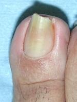原因不明の巻き爪