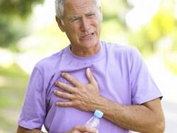 食道破裂の症状・診断・治療