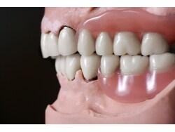 20代から進行する出っ歯「フレアーアウト」とは?