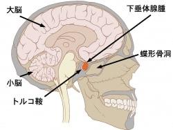下垂体腺腫の症状・診断・治療