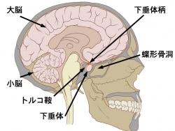 頭蓋咽頭腫の症状・診断・治療