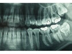 正露丸がむし歯の痛みにも効く理由