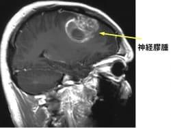 神経膠腫の症状・診断・治療