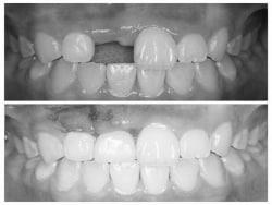 インプラントで解決! 外傷で歯を失った場合の治療法