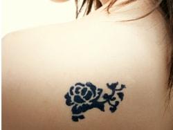 タトゥーを消したい人に…タトゥー除去の正しい方法