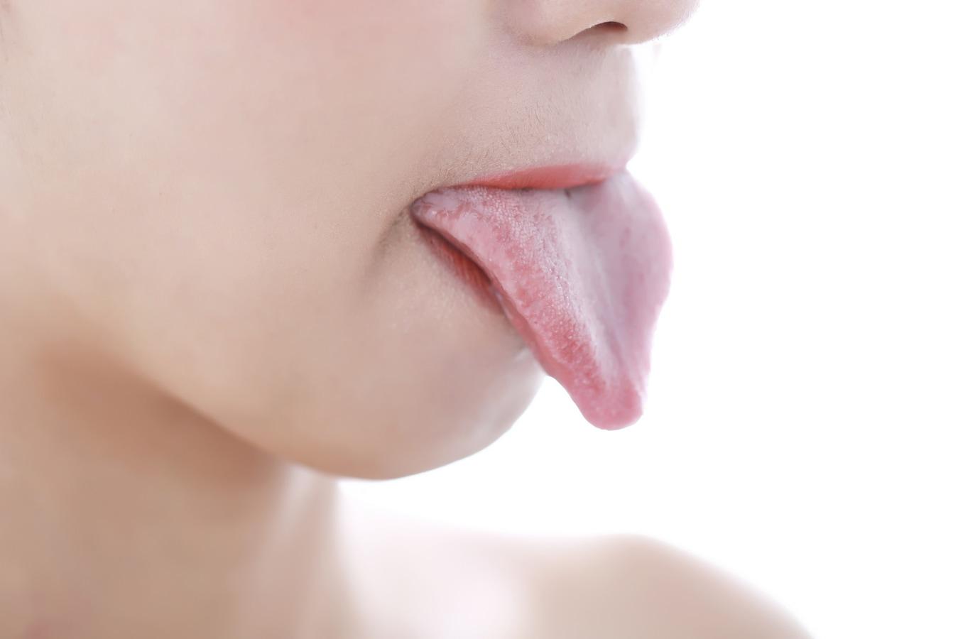 が 白い 舌