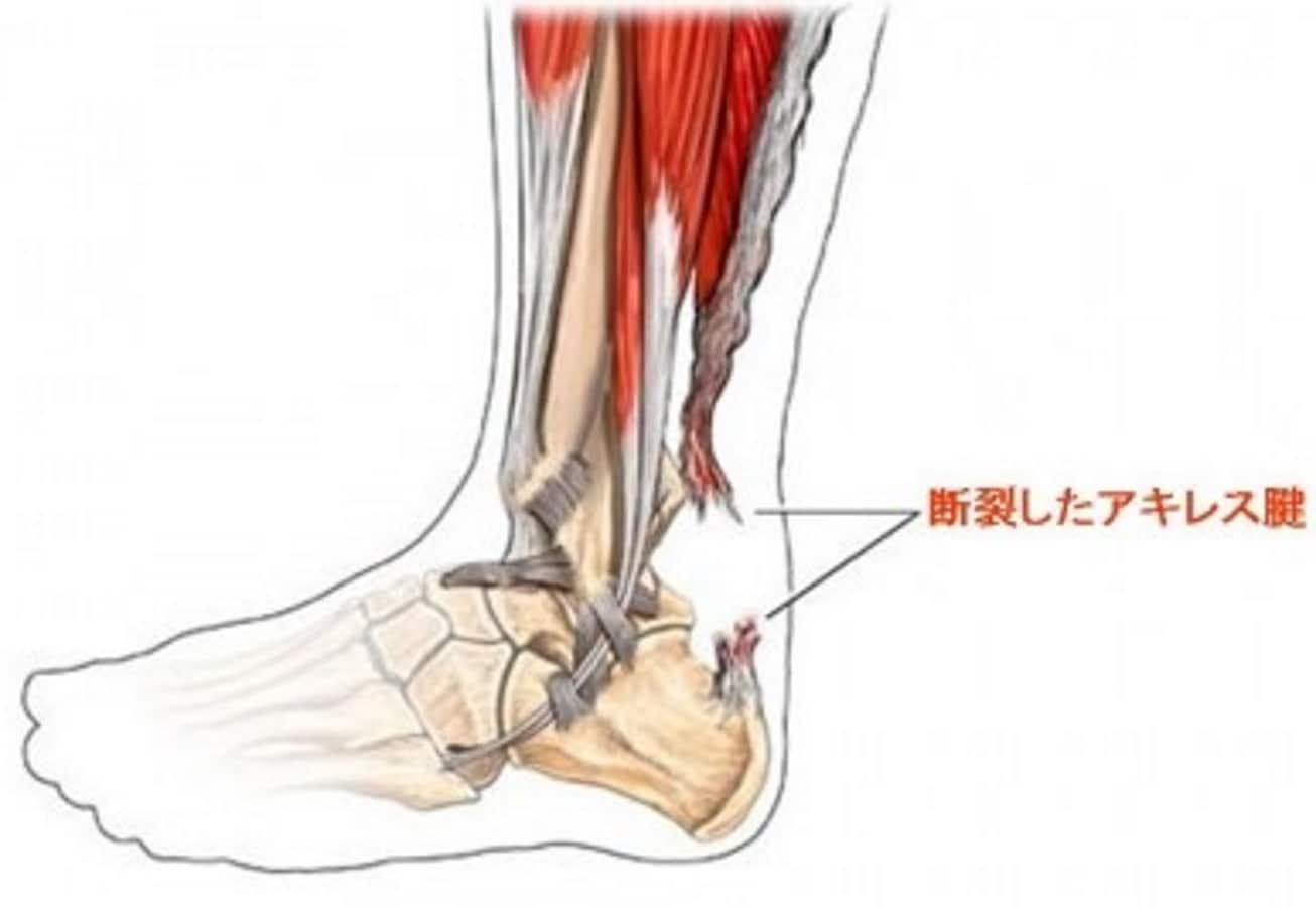 アキレス腱を切る「アキレス腱断裂」の治療は手術?症状・リハビリも ...