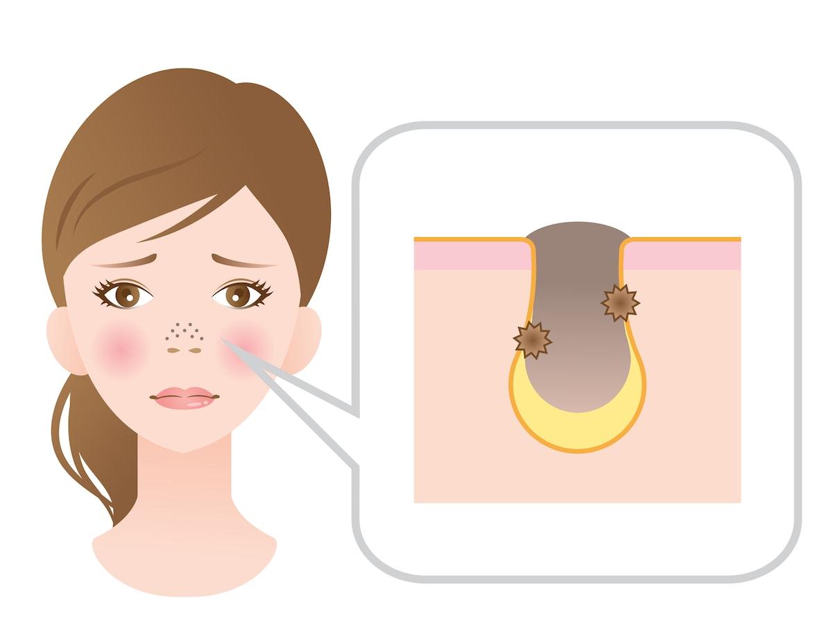 治す 方法 鼻 いちご