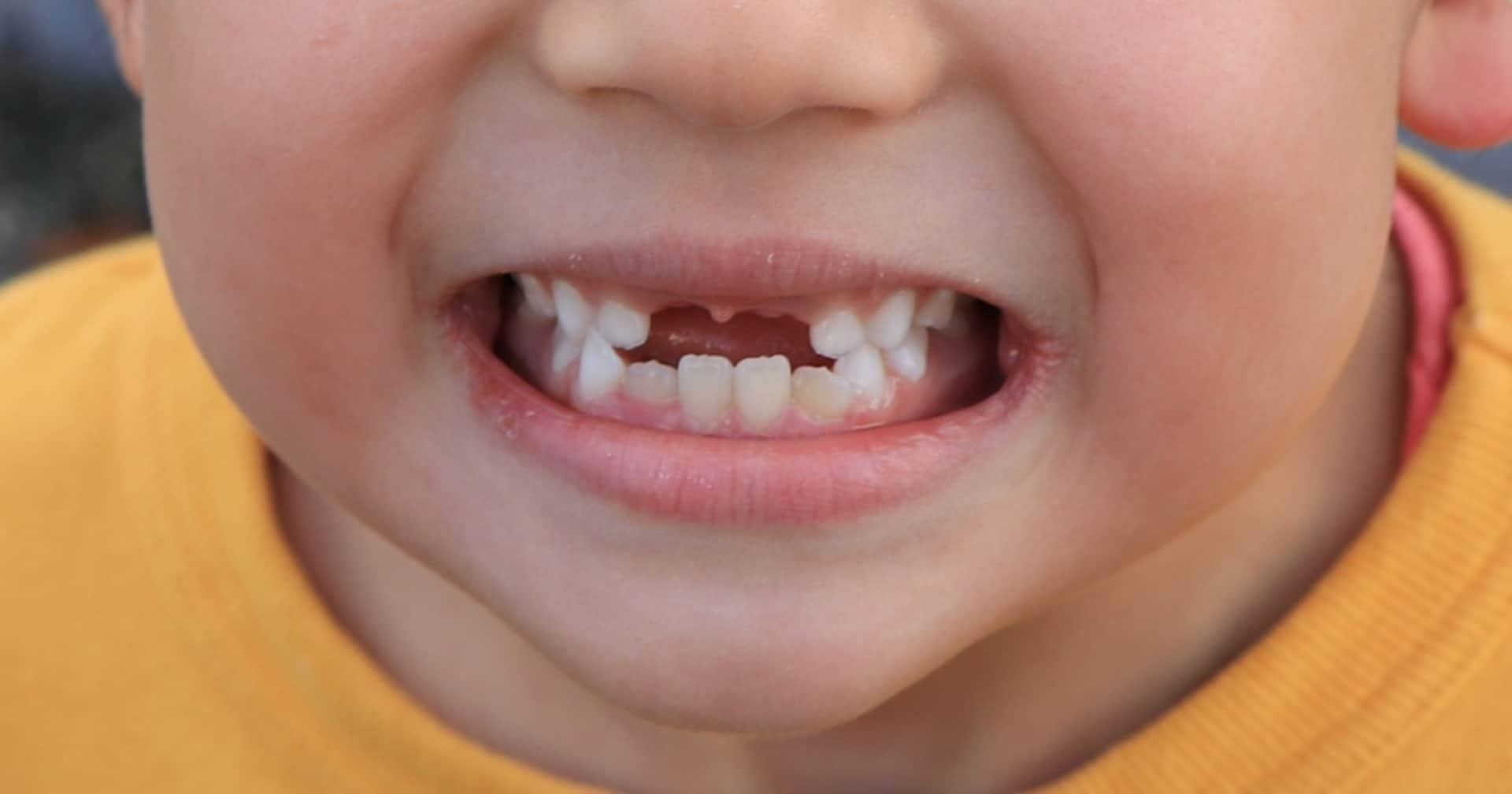 """金髪よりタトゥーより""""効果的""""!? 「前歯がない」大人の破壊力とは?"""