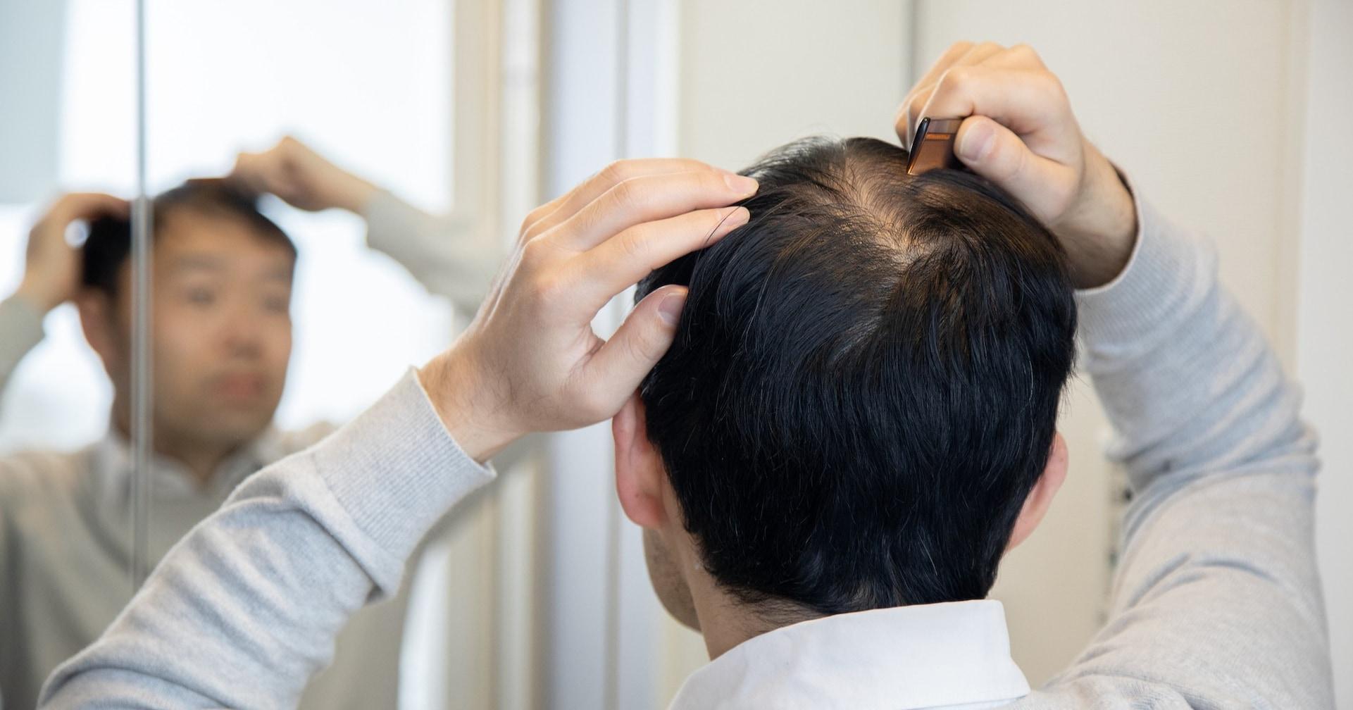 コロナ禍におけるリモートワークの連続で「薄毛」が気になる男子が急増中!? ってなわけで成分配合が業界最多であるらしい育毛剤を試してみる!