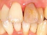 歯の神経が「突然死!」に見舞われるとき