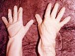 ノロウイルスに負けない感染予防法