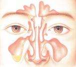 鼻づまり・鼻水などの症状があるなら「副鼻腔炎」の可能性も…