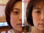 目尻や額にできる「表情ジワ」にアプローチするボトックス注射