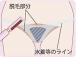 アンダーヘアの形について