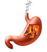 胃もたれの改善に効果的なツボを紹介